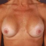 Aesthetic Breast Revision - Case #16 Before