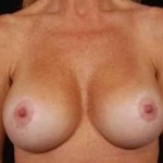 Aesthetic Breast Revision - Case #16 After