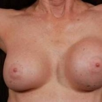 Aesthetic Breast Revision - Case #17 Before