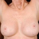 Aesthetic Breast Revision - Case #17 After