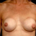 Aesthetic Breast Revision - Case #18 Before