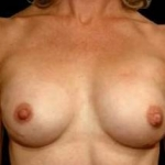 Aesthetic Breast Revision - Case #18 After