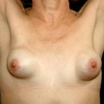 Aesthetic Breast Revision - Case #19 Before