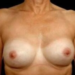 Aesthetic Breast Revision - Case #19 After