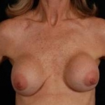 Aesthetic Breast Revision - Case #20 Before