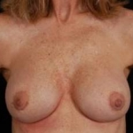 Aesthetic Breast Revision - Case #20 After