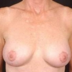 Aesthetic Breast Revision - Case #21 After