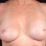 Aesthetic Breast Revision - Case #22 After