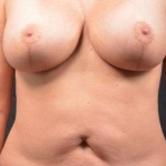 Abdominoplasty - Case #39 Before