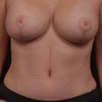 Abdominoplasty - Case #39 After