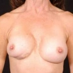 Aesthetic Breast Revision - Case #23 Before