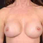 Aesthetic Breast Revision - Case #23 After