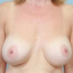 Aesthetic Breast Revision - Case #25 Before