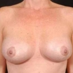 Aesthetic Breast Revision - Case #25 After