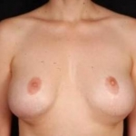 Aesthetic Breast Revision - Case #26 Before