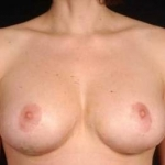 Aesthetic Breast Revision - Case #26 After