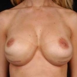 Aesthetic Breast Revision - Case #27 Before