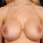 Aesthetic Breast Revision - Case #27 After