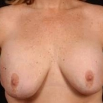 Aesthetic Breast Revision - Case #28 Before