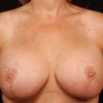 Aesthetic Breast Revision - Case #28 After