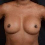 Aesthetic Breast Revision - Case #29 After