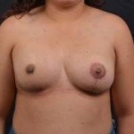 Breast Asymmetry Correction - Case #13 After