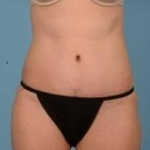 Abdominoplasty - Case #32 After