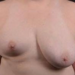 Breast Asymmetry Correction - Case #12 Before