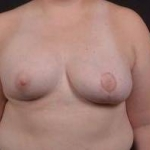 Breast Asymmetry Correction - Case #12 After