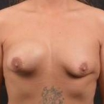 Breast Asymmetry Correction - Case #7 Before