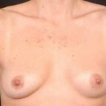 Breast Asymmetry Correction - Case #1 Before
