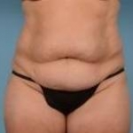 Liposuction and Abdominoplasty - Case #37 Before