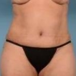 Liposuction and Abdominoplasty - Case #37 After