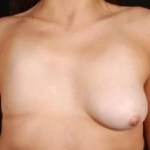 Breast Asymmetry Correction - Case #2 Before
