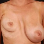 Breast Asymmetry Correction - Case #3 Before