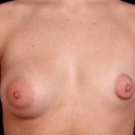 Breast Asymmetry Correction - Case #5 Before
