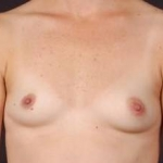 Breast Asymmetry Correction - Case #7a Before
