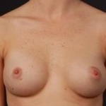 Breast Asymmetry Correction - Case #7a After