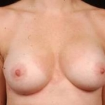 Breast Asymmetry Correction - Case #8 After