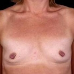 Breast Augmentation 410 - Case #1 Before