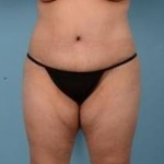 Liposuction, Abdominoplasty, And Brazilian Butt Lift - Case #33 After