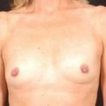 Breast Augmentation 410 - Case #2 Before