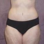 Liposuction, Abdominoplasty, Body Lift & Brachioplasty After Massive Weight Loss - Case #32 After
