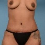 Abdominoplasty - Case #31 After