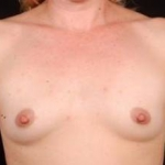Breast Augmentation 410 - Case #3 Before