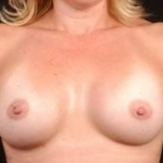 Breast Augmentation 410 - Case #3 After