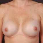 Breast Augmentation 410 - Case #4 After
