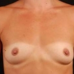 Breast Augmentation 410 - Case #5 Before