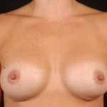 Breast Augmentation 410 - Case #5 After