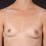 Breast Augmentation 410 - Case #6 Before